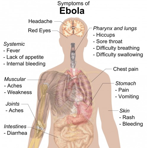 An image depicting the signs and symptoms of the Ebola virus.