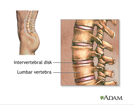 There are five lumbar vertebrae located in the lower back. Between those vertebrae lie the discs and nerves