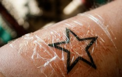 How to Heal a Tattoo With No Scabbing