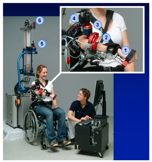 Advanced therapies like robotic training assisted by a bot helps stroke patients recover much faster.