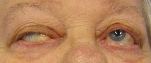 Drooping Eyes of A Mayasthenia Gravis Patient