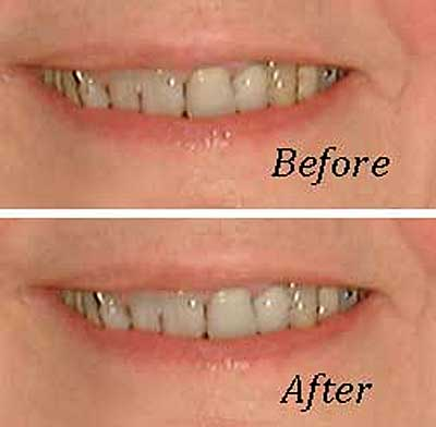 Before and after photo showing teeth whitened by digital editing software