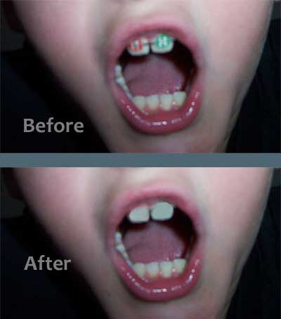 Before and after photo of braces removed with photo editing software
