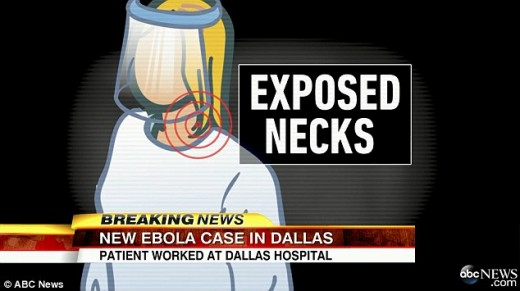 Nurses say their necks were exposed while treating Duncan, first U.S. Ebola patient.