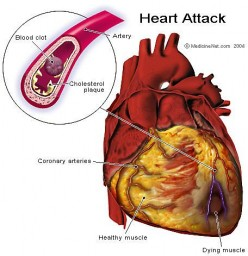 Lower Cholesterol Can Benefit Your Heart