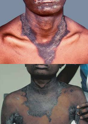 Casal's Necklace - eczema enveloping the neck that is very typical of Pellagra