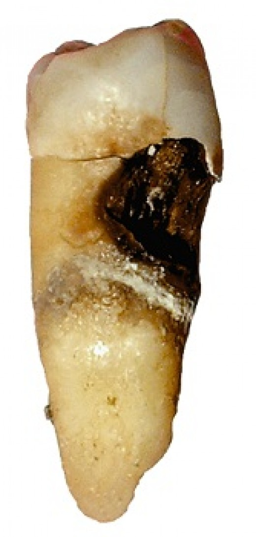 A badly decayed tooth
