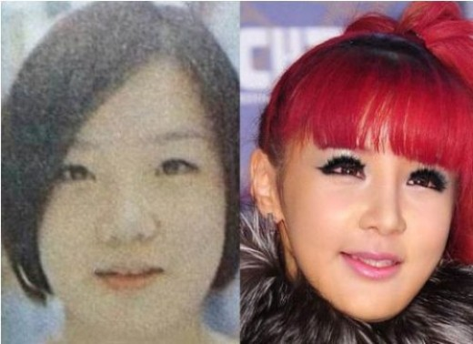Park Bom, member of arguably the most popular girl group in Korea, 2NE1, has one of the most drastic plastic surgery procedure.