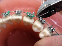 Brackets use a wire and tension to correct teeth positoning