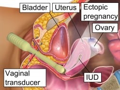 Successful Pregnancy After Ectopic Pregnancy