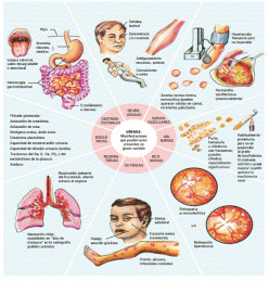 What is Uremia?