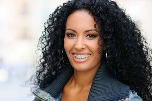 Traditional braces have less metal and are more comfortable than previously.