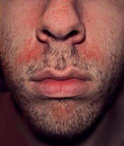 A common location of seborrheic dermatitis -