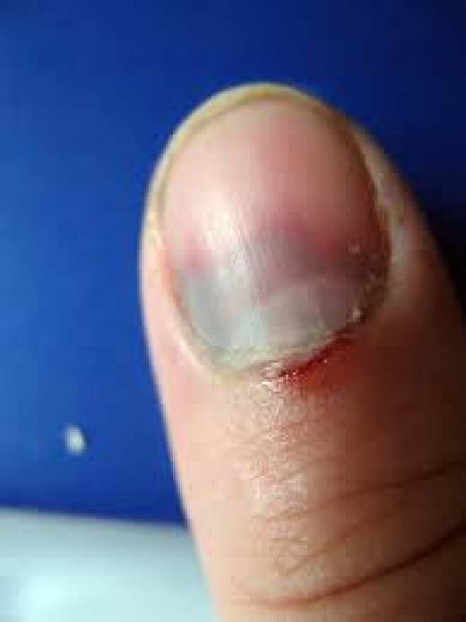 Finger Jamming in doors or windows