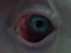 Hyphema of the Eye
