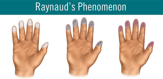The various discoloration of Raynaud's Syndrome