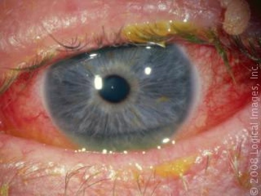 If you have an eye like this, see your doctor right away.
