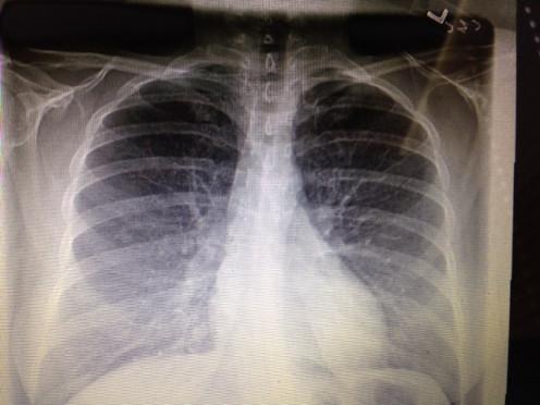 My chest xray. TMI?