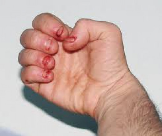 Some people with O.C.D. bite their nails off on a continual-basis