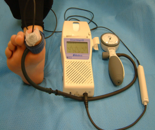 Photoplethysmogram measurement is made at a peripheral site - finger, ear, or forehead and represents the volume of blood in the vessel at the site of measurement.