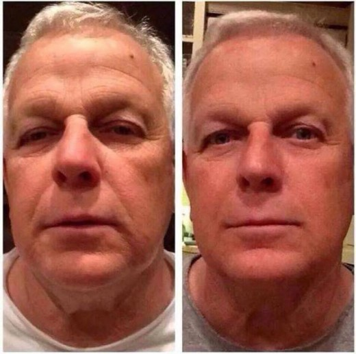 Nerium Before and After Pictures