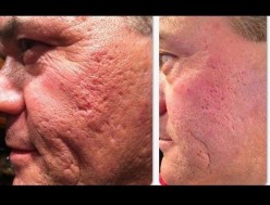 Does Nerium Really Work?