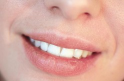 Treatment and Prevention of Dry, Chapped Lips