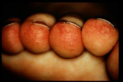 Swelling And Redness On Fingers And Toes In Winter - Chilblains Or Perniosis
