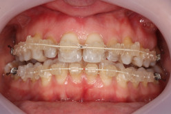 6 Month Braces | A Case Study