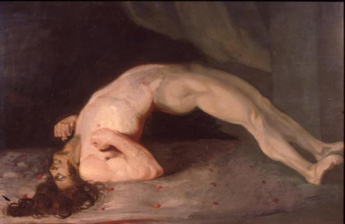 "By: Sir Charles Bell - ""Tormented Pain""  or ""Tetanus"""