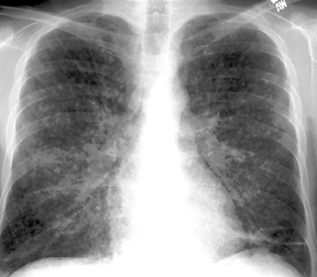 A military patient xray of coccidioidomycosis, or Valley Fever.