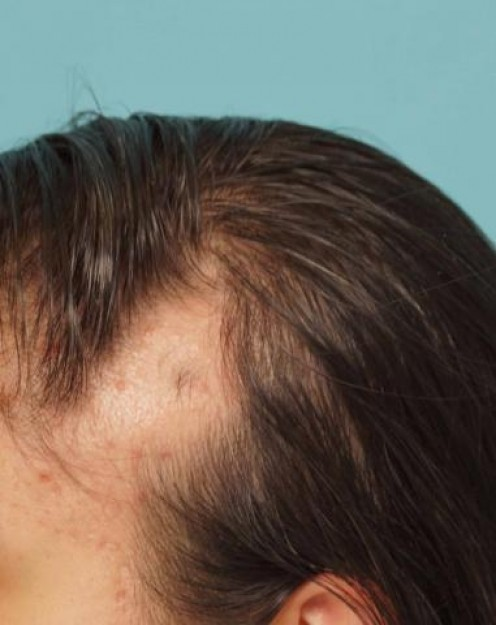 Triangular Alopecia