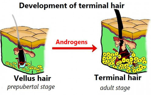 How androgens convert vellus hair to terminal hair. Modified and translated file under sharealike license on Creative Commons.