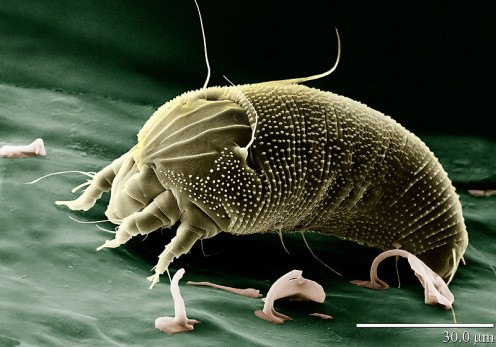 Image of a rust mite