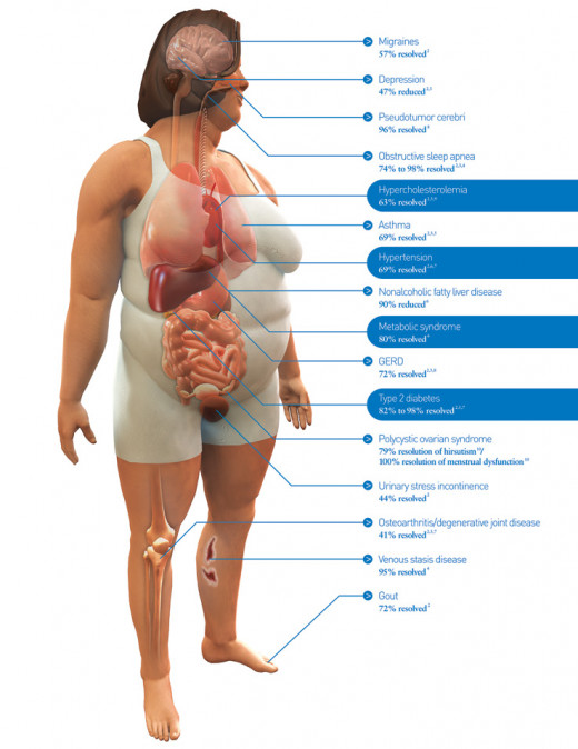 Obesity Problems - How Losing Weight Resolves Medical Problems Diagram on Overweight Female
