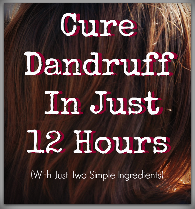 How To Cure Scalp Eyebrow Dandruff In 12 Hours Overnight Bellatory