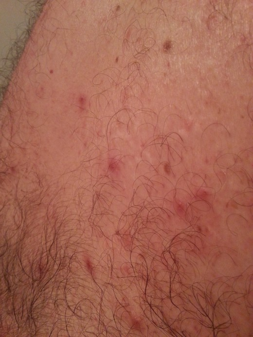 Tiny pimple clusters connected by silvery trails like these are where mites tunneled under the outer skin and left an itchy, irritating rash. Hubby's back is STILL healing 3 months later...now it is dry and scaly, but improving!