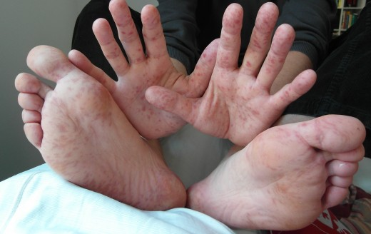 HFMD spots on the hands and feet of a 36yr old male
