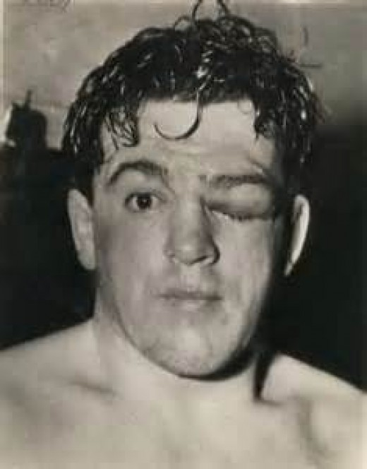 Former middleweight champion Al McCoy shows off the scars of battle inside the squared circle. You win some and you lose some.