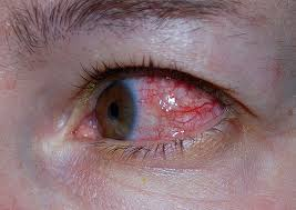 Eye pierced by urticating hairs