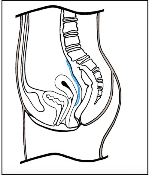 This diagram shows how the uterus is pulled back into position after sacrohysteropexy.