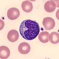 Thrombocytopenia, Low Platelet Count, and Bleeding Problems