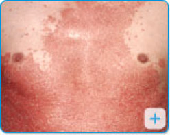 The Effectiveness Of Low Level Laser Therapy (LLLT) Or Photo Modulation On Psoriasis. A Summary