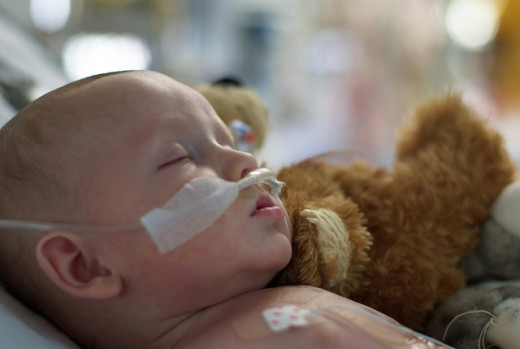 A baby two days after open heart surgery
