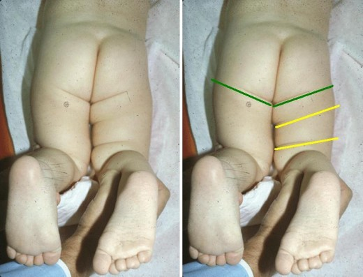 Hip Dysplasia - 'Clicky Hips' in Babies | HubPages