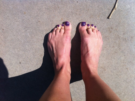 Athletes Toes