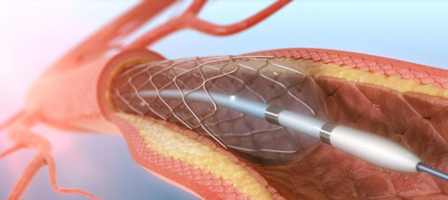 A visualization of the angioplasty procedure
