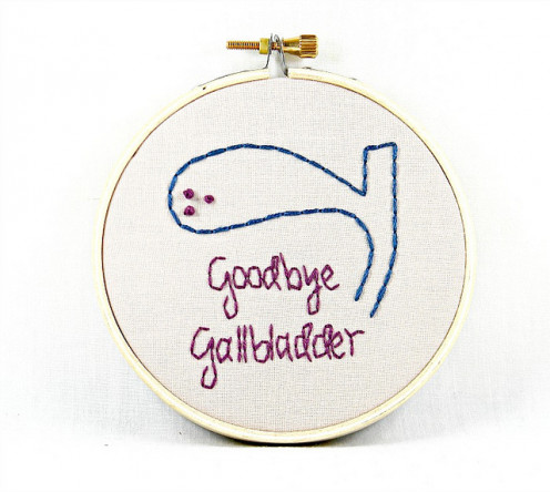 You don't need to be sentimental about your missing gallbladder