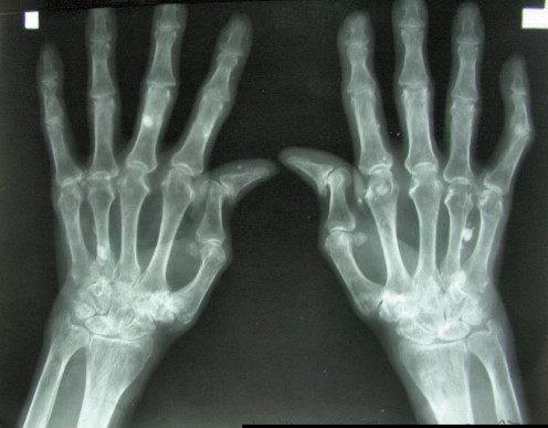 An X-ray of rheumatoid arthritis in the hands