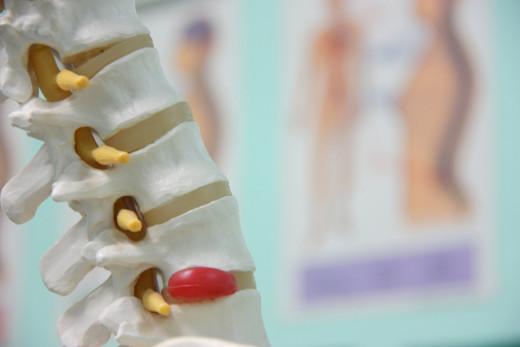 Spinal bone density
